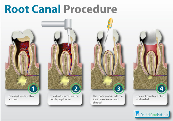 "What is a ""root canal"" procedure like?"